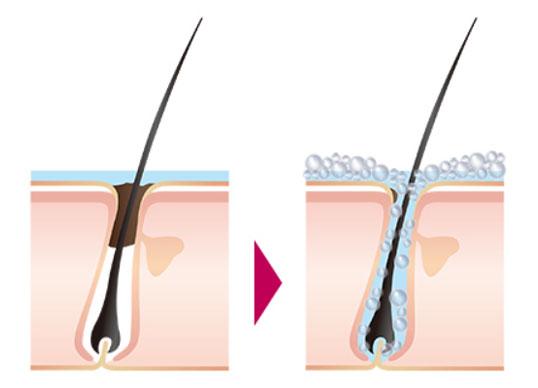 炭酸が頭皮の毛穴をクレンジングするイメージ