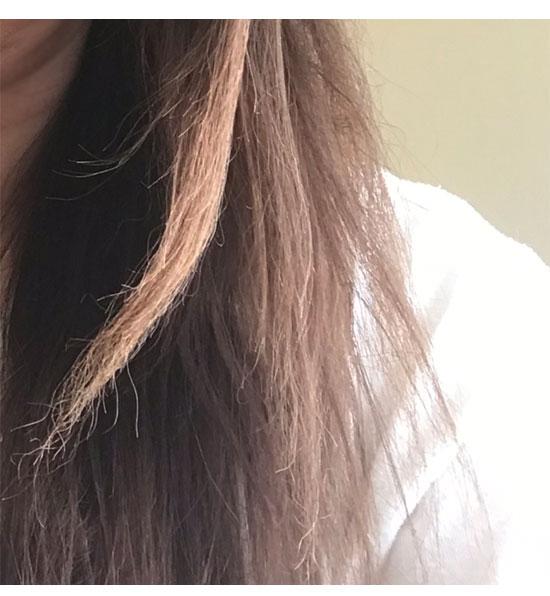 縮毛矯正の失敗によるビビリ毛の写真-1