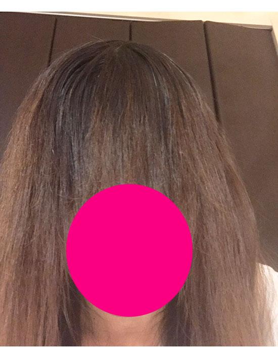 縮毛矯正の失敗によるビビリ毛の写真-2