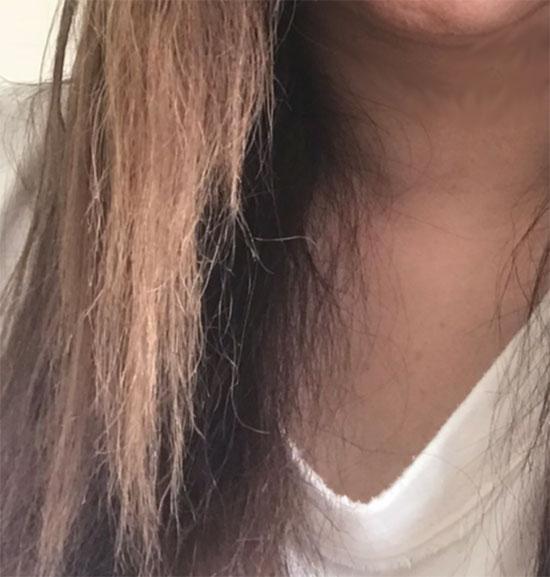 縮毛矯正の失敗によるビビリ毛の写真-3