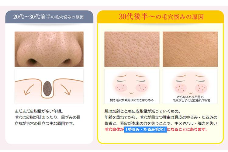 年代別の毛穴の悩みを比較したイメージ図