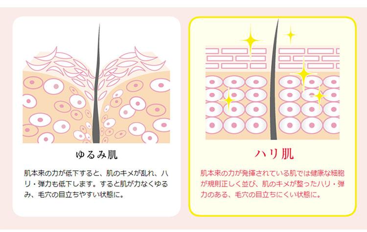 ゆるみ肌とハリ肌の毛穴の状態を比較したイメージ図