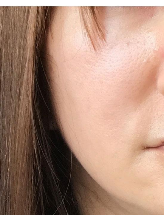 ライースリペア 実感セットを使用後1か月の肌状態