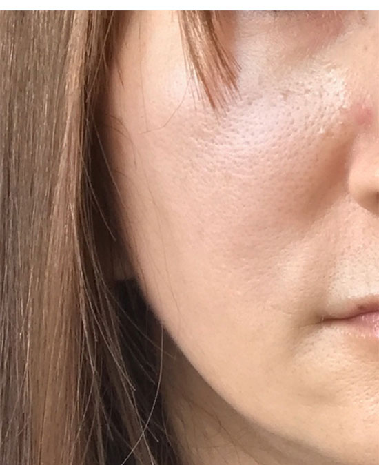 ライースリペア 実感セットを使用前の肌状態