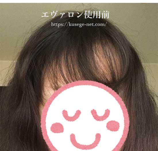 エヴァロン使用前の画像(前髪)