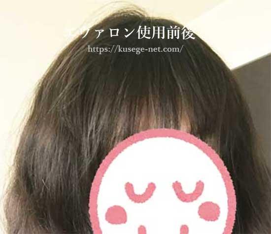 エヴァロン使用後の画像(前髪)