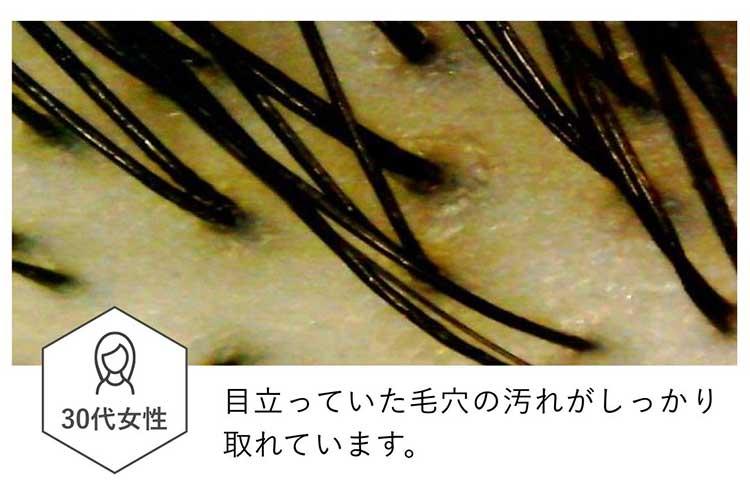 ハニーケアシャンプー使用後の地肌(マイクロスコープ画像)